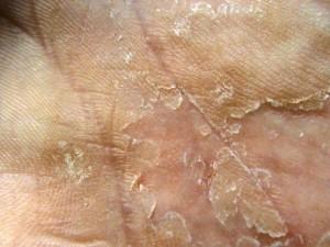 nitric crust and cracks